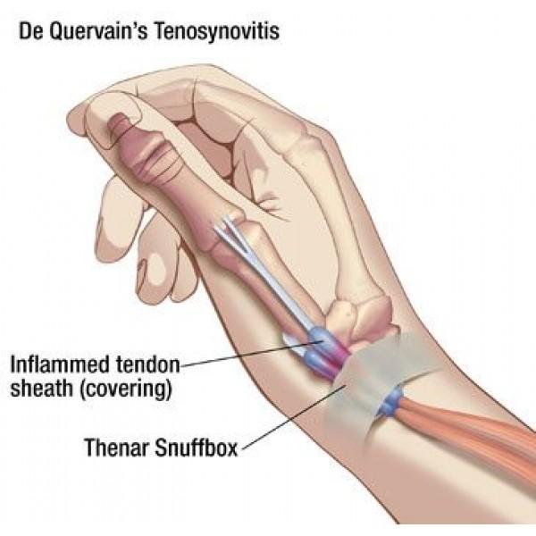 Στενωτική τενοντοελυτρίτιδα του De Quervain